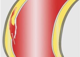 Признаки и последствия расслаивающейся аневризмы аорты