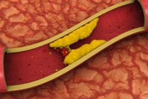 Поражение легочной артерии — склероз аорты