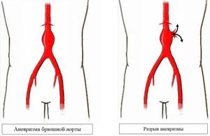 Аневризма бифуркации аорты