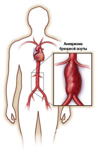Аневризма, возникшая в брюшном отделе аорты