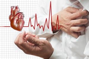 Причины аневризмы левого желудочка
