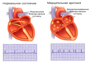Фибрилляция предсердий или же мерцательная аритмия
