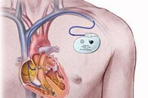 Лечение аритмии сердца хирургическим путем