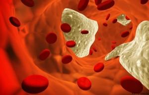 Атеросклеротические изменения - этиология