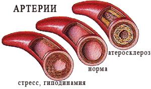 Атеросклероз сосудов головного мозга.