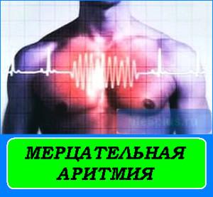 Мерцательная аритмия сердца — чем опасна эта патология