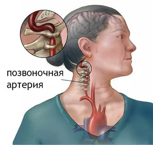 Нарушение кровотока в правой позвоночной артерии