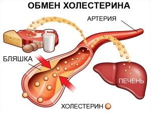 Этиология утолщения стенок аорты сердца