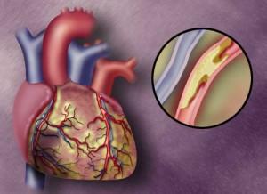 Этиология развития кальциноза аорты