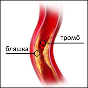 Причины расслаивающейся аневризма аорты