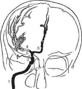 Описание сифона внутренней сонной артерии
