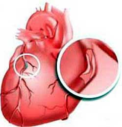 Причины, провоцирующие возникновение аритмии сердца