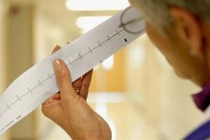 Чем опасна такая патология, как синусовая аритмия сердца