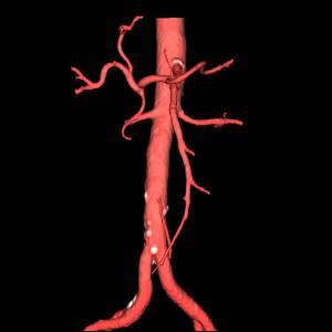 stroenie-brjushnoj-chasti-aorty