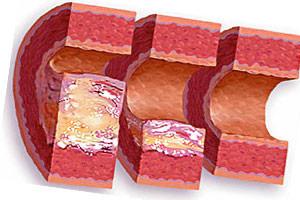 Почему происходит уплотнение стенок аорты