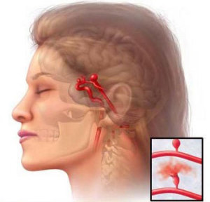 Выпячивание стенки сонной артерии — аневризма