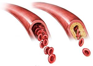 Показания к триплексному сканированию брахиоцефальных артерий