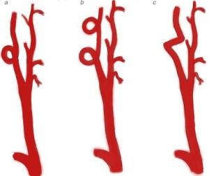 Деформация внутренней сонной артерии