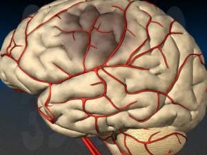 Гипоплазия или недоразвитие артерии головного мозга