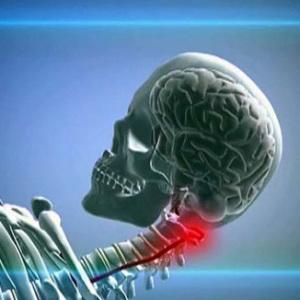 Признаки развития гипоплазии правой позвоночной артерии