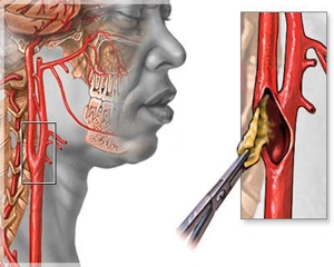 Проведение эндартерэктомии сонных артерий