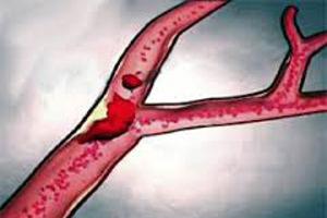 Этиология закупорки легочной артерии тромбом