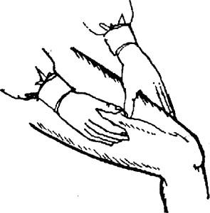 как остановить кровотечение с артерии на ноге