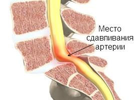 Сдавливание обеих позвоночных артерий