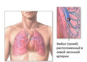 Признаки и последствия закупорки легочной артерии тромбом