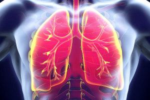 Образование аневризмы на стенке легочной артерии