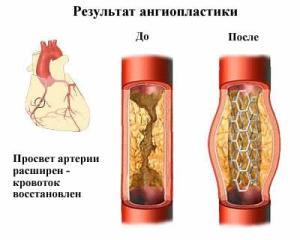 Методики ангиопластики и стентирования в лечении коронарных артерий