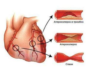 Изменение аорты сердца при развитии атеросклероза