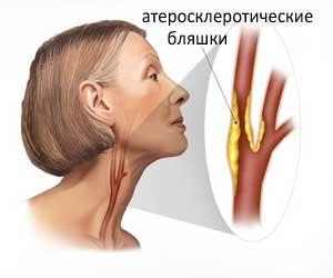 ateroskleroz-sosudov-shei
