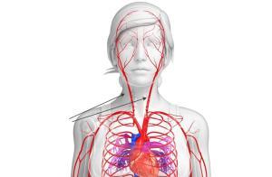 Сонная артерия - функции сосуда