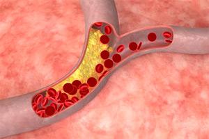 Клиническая картина генерализованного атеросклероза