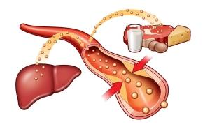 Повышенное содержание холестерина в крови