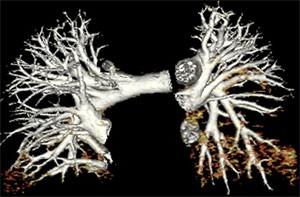Клиническая картина тромбоэмболии мелких ветвей легочной артерии
