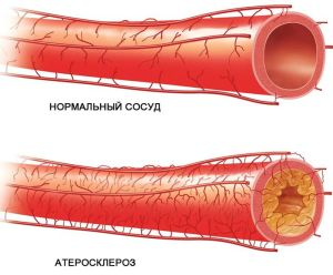 Мультифокальная форма атеросклероза