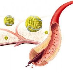 Характеристики нестенозирующего атеросклероза