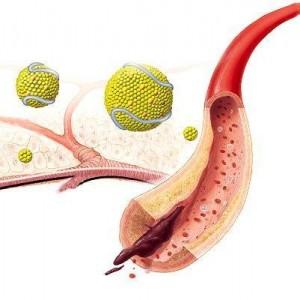 nestenozirujushhij-ateroskleroz