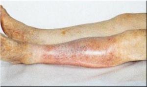 obliterirujushhij-ateroskleroz-nizhnih-konechnostej