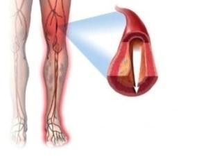 Сужение сосудов нижних конечностей при облитерирующем атеросклерозе