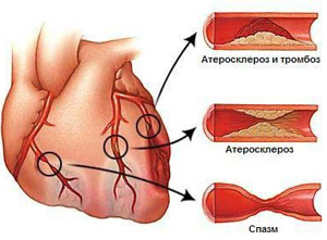 Патологии коронарных артерий