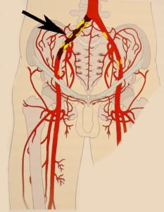 Наружная подвздошная артерия