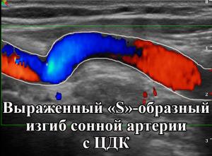 Преимущества УЗИ сонной артерии