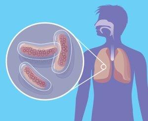 Причина аневризмы на стенке легочной артерии