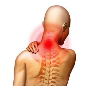 Этиология синдрома шейной артерии