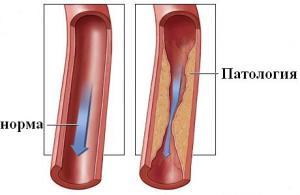 Причины и последствия стеноза сонной артерии
