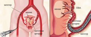 Суть проведения эмболизации при миоме маточных артерий