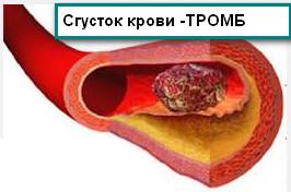 Образование тромба в просвете сонной артерии
